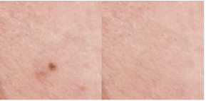 точечная восстанавливающая кисть, до и после